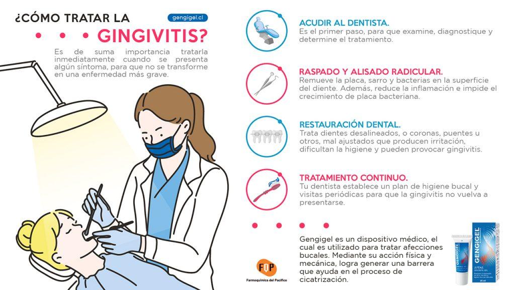 como tratar la gingivitis infografia