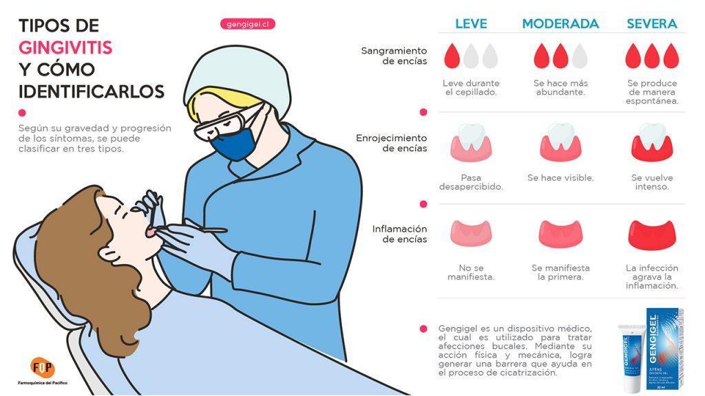 tipos de gingivitis y como identificarlos infografia