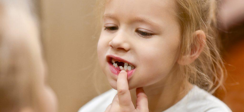 denticion gengigel Gingivitis en niños