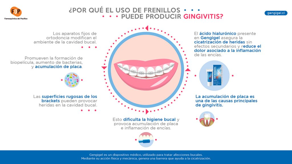 uso de frenillos y gingivitis infografia